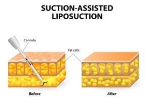 Laser Liposuction Oberschenkel